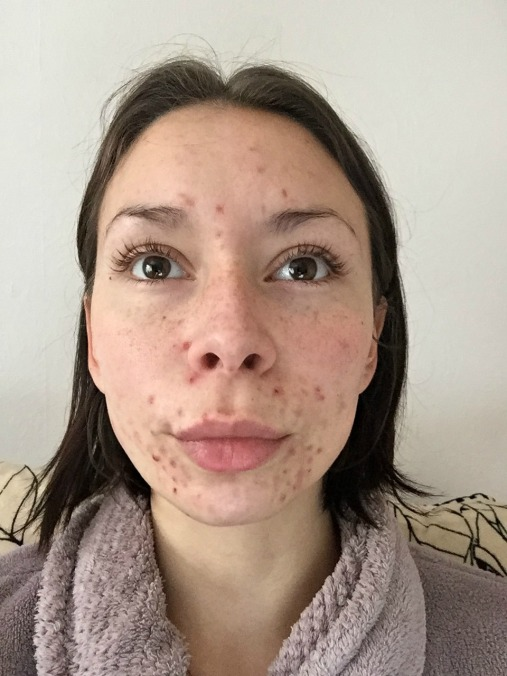 Cystic Acne Front